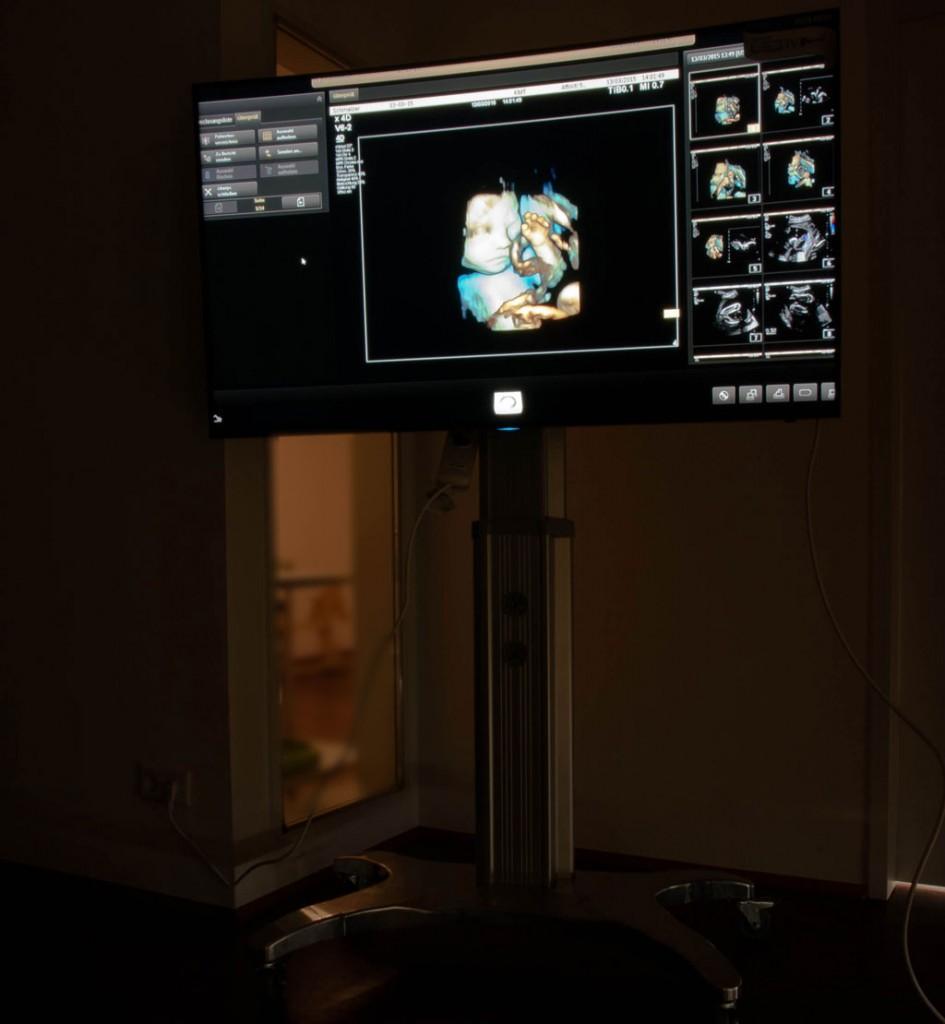 BabyFlash-3D-Ultraschall