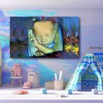 3d ultraschall leinwand 3d ultrasound canvas